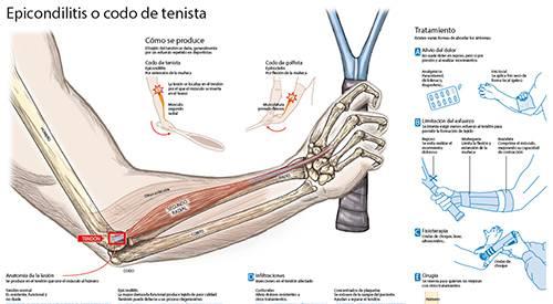 Epicondilitis o codo de tenista